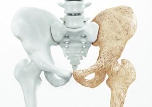 Osteoporosis upper limb bones