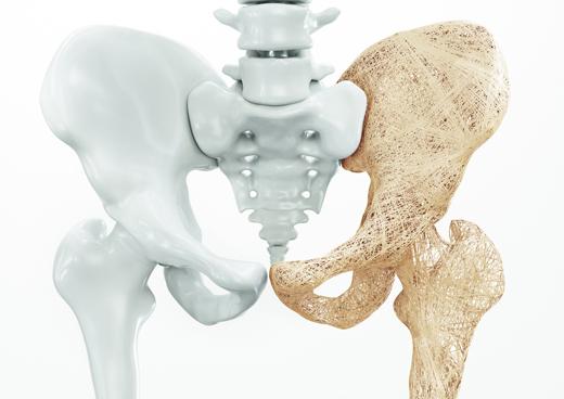 Jak ustrzec się osteoporozy