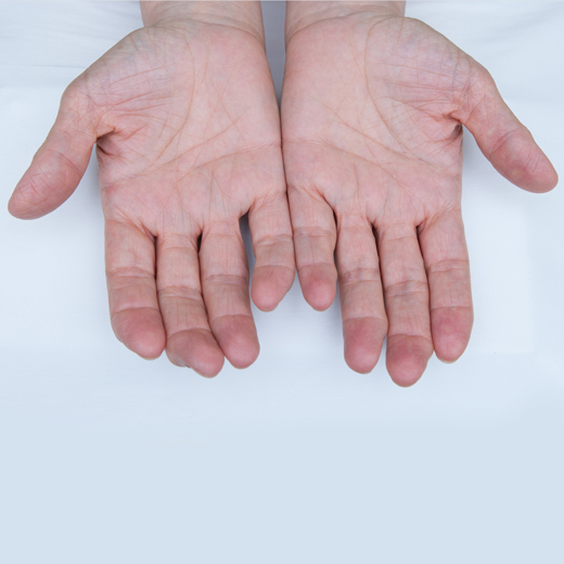 Osteoarthritis Hands and fingers of a female's hands.