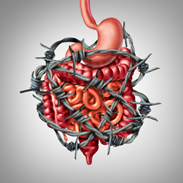 Painful digestion IBS or irritable bowel syndrome and intestine pain or Intestinal discomfort inflammation problem or constipation as barbed wire with 3D illustration elements.